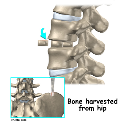 Lumbar Herniated Disc: What You Should Know