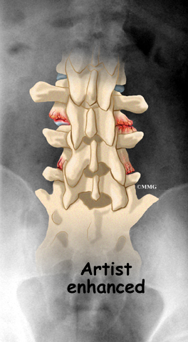Lumbar Facet Joint Arthritis Eorthopod Com