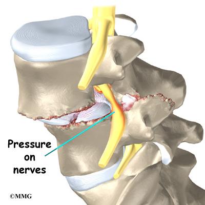Lumbar spinal listhesis