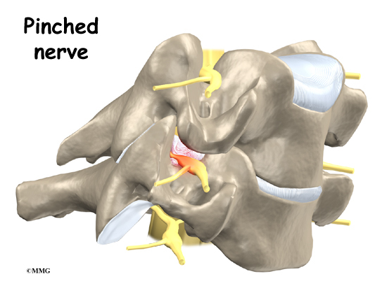 New Blog 1: Pinched Nerve In Neck