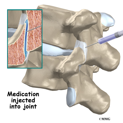 facet joint injections eorthopodcom