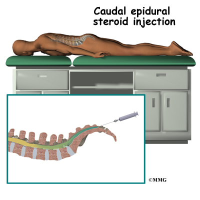 interlaminar caudal epidural steroid injection