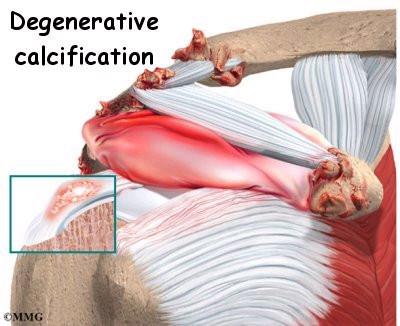 Calcific Tendonitis Shoulder Natural Treatment