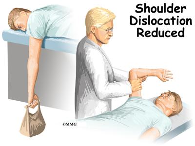 Shoulder Dislocations Treatment Shoulder Dislocation is