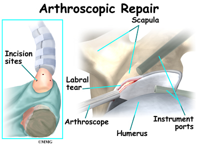 Open Rotator Cuff Repair Recovery Time