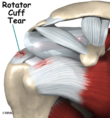 total gym with torn rotator cuff