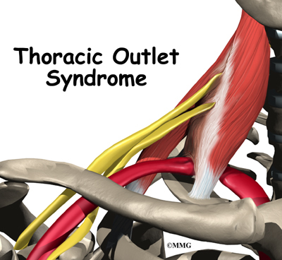 Thoracic Outlet Syndrom Thoracic Outlet Syndrome Tos