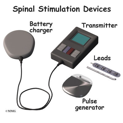 Spinal Cord Stimulator Removal Problems