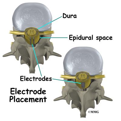 Dorsal Column Stimulator Cord stimulation you get