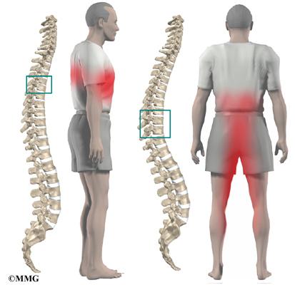 El tratamiento sanatorio después de las operaciones sobre la columna vertebral