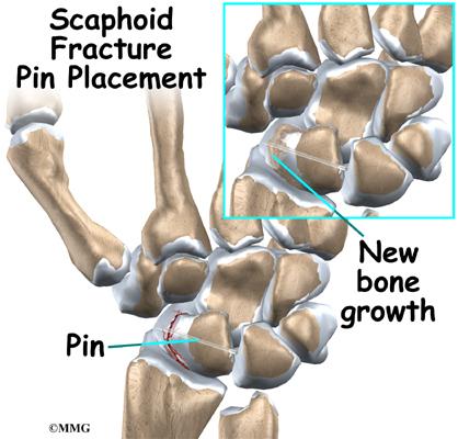 Wrist Fracture Scaphoid Bone